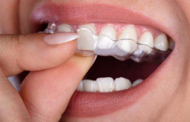 placa dentaria